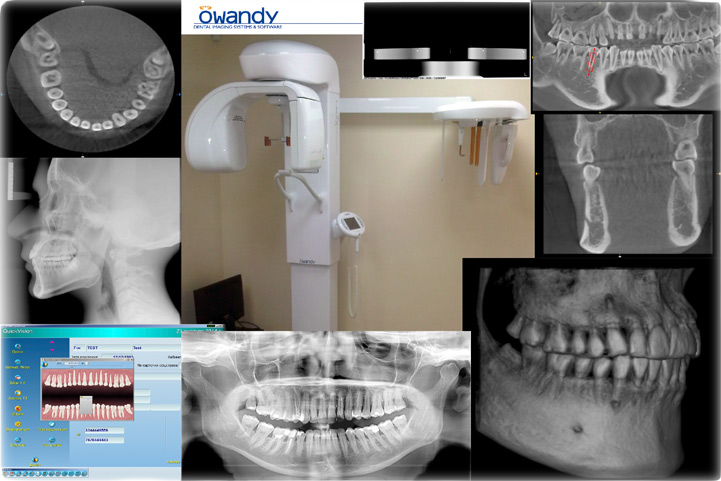 Used CBCT Owandy I-Max Touch 3D+Ceph for sale